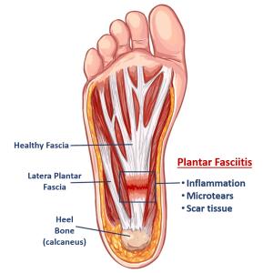 What is Plantar Fasciitis